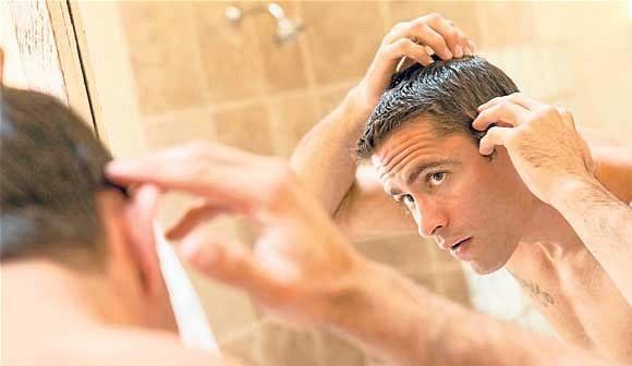 Como tratar la alopecia
