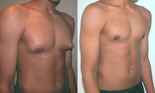 Tamao ideal de aumento de senos - Ciruga Plstica Dr