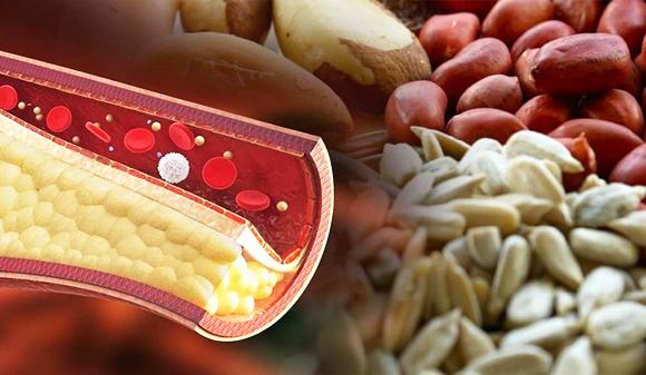 Fitoesteroles, ¿reducen el colesterol?